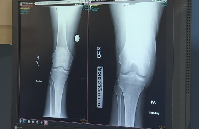 Phoenix surgeon performs Arizona's first artificial meniscus implant surgery